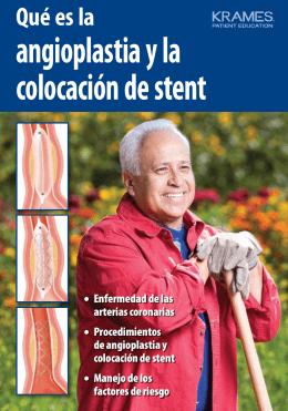 Qué es la angioplastia y la colocación de stent