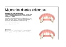 Mejorar los dientes existentes