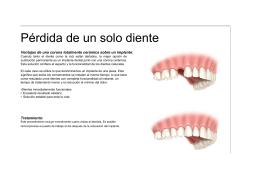 Pérdida de un solo diente