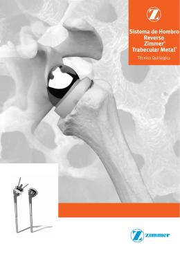 Técnica quirúrgica del Sistema de Hombro Reverso de Trabecular