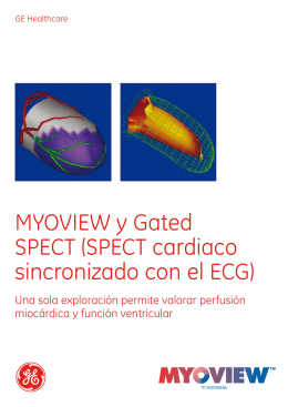 MYOVIEW y Gated SPECT (SPECT cardiaco sincronizado con el