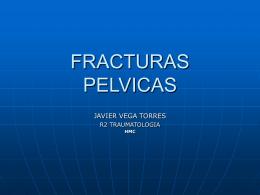 FracturasPelvicas.pps