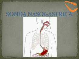 Tecnica para colocacion de Sonda Nasogastrica