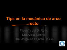 Tips en la mecanica de arco recto